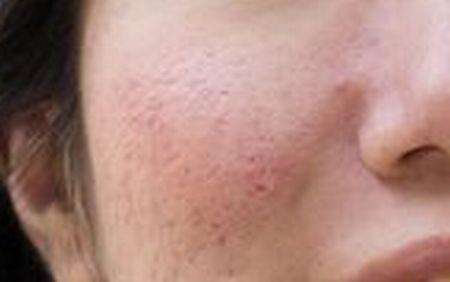 角化異常(クレーター)毛穴のイメージ写真