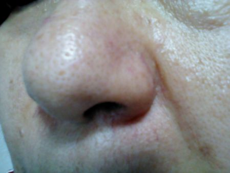 いちご鼻の毛穴ケアが必要な人の写真