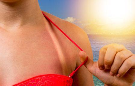 日焼け後のアフターケア対策が必要な女性の肌の写真