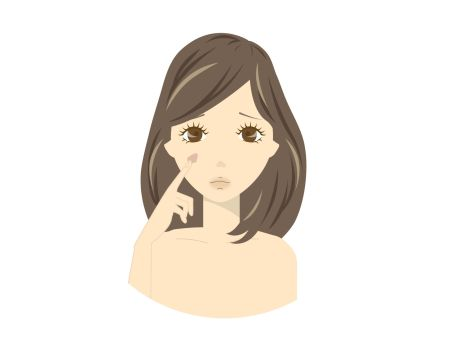 シミが気になり美白対策がしたい女性のイラスト