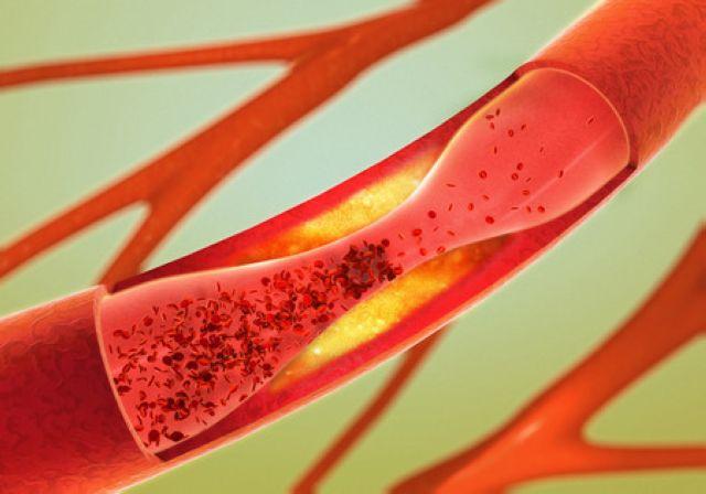 老化する血管のイメージ図